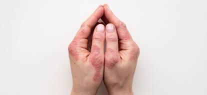 Dłonie ze zmianami łuszczycowymi.