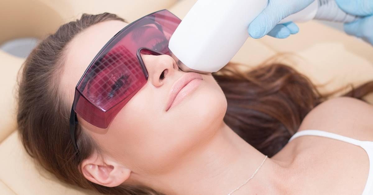Zabieg usunięcia wąsikiem laserem do depilacji.