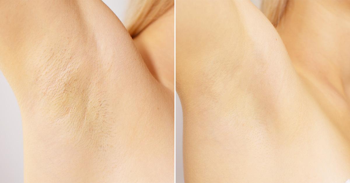 Zdjęcie porównawcze pachy przed ipo depilacji laserowej.