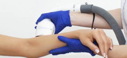 Zbliżenie na głowicę lasera podczas zabiegu depilacji laserowej rąk.
