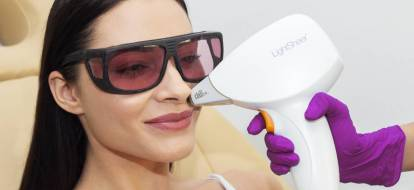 Depilacja laserowa twarzy