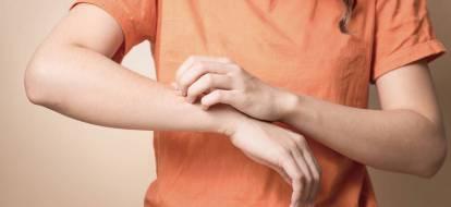 Kobieta w pomarańczowej koszulce drapie swędzące ramię.