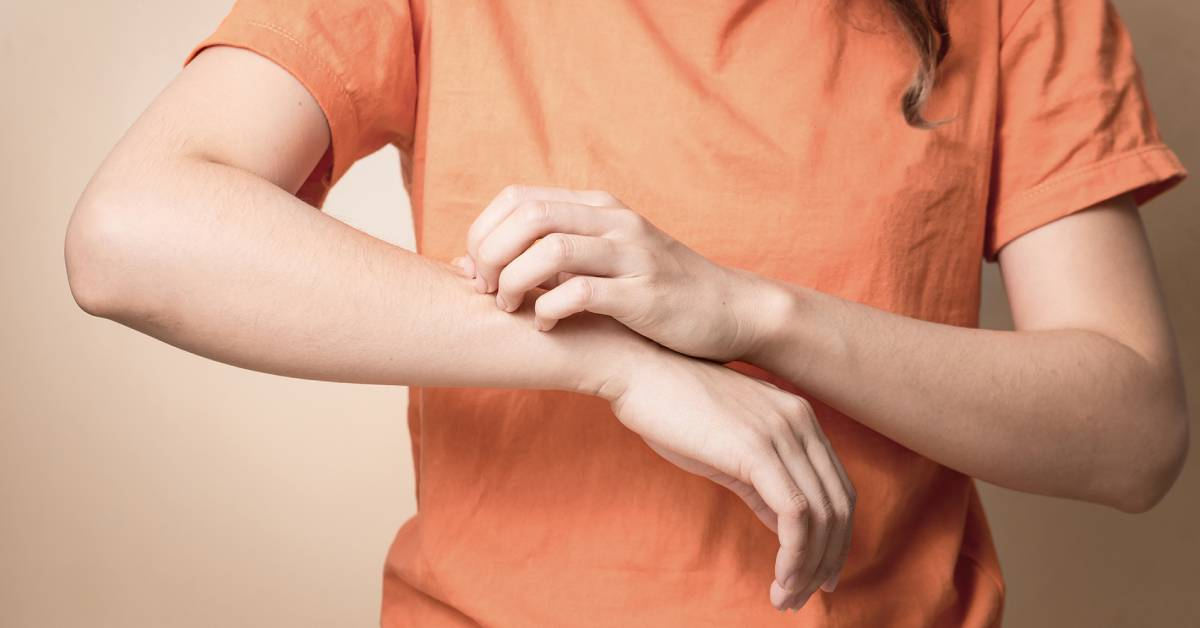 Kobieta wpomarańczowej koszulce drapie swędzące ramię.
