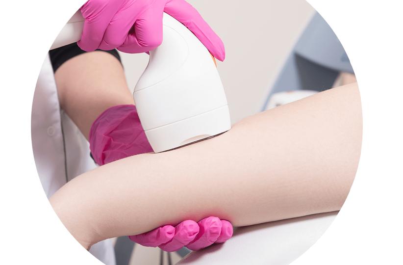 depilacja laserowa rąk